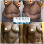 dr j curves tummy tuck prices