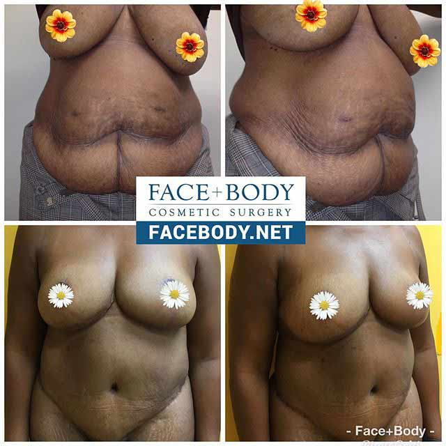 Dr Miami Before After tummy tuck breast lift