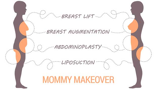 Dr Miami Mommy Makeover