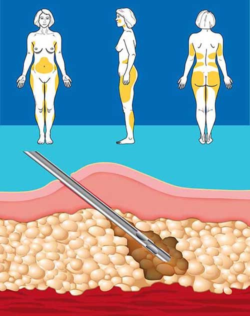 Dr Miami Prices Liposuction